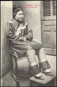 1910s Vietnam - Saigon Chinese Woman Foot Binding